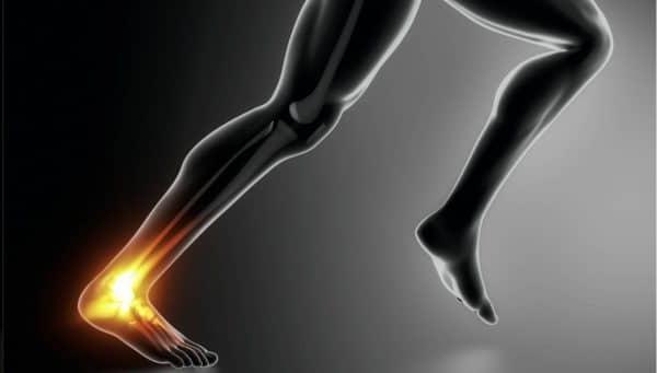 Achillespees blessure, deel I
