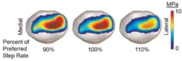 Wat is de juiste looptechniek bij kniepijn?
